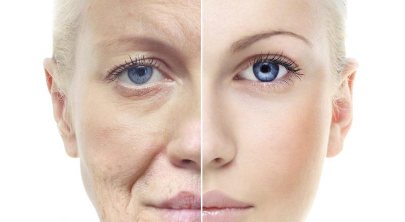 5 лучших советов по уходу за кожей лица после 30